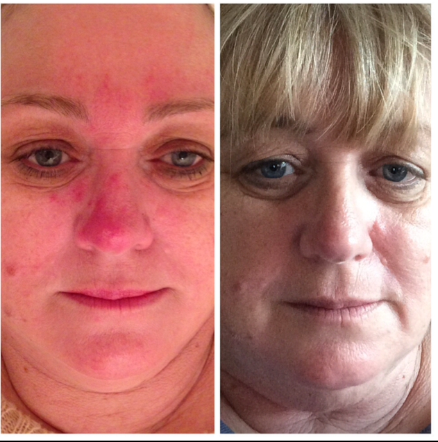 Josi's client before and after