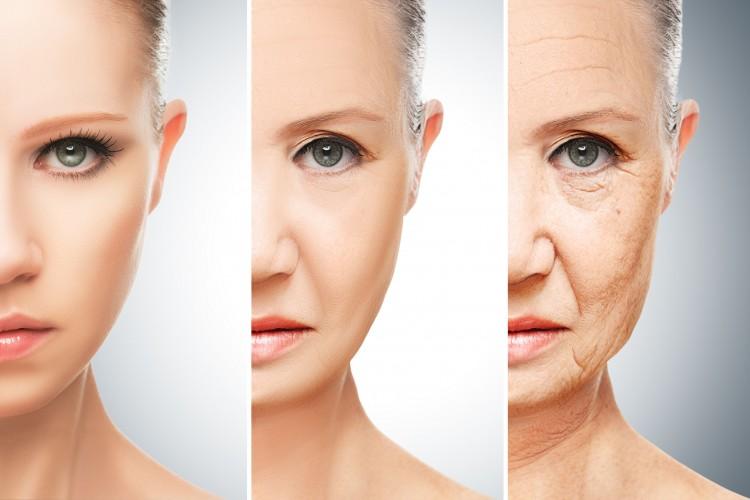 Skin Rejuvenation with IPL