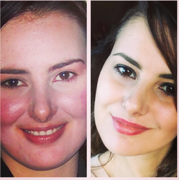 Josi before and after 12 sessions of IPL